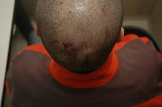 george_zimmerman_back_head_bloody